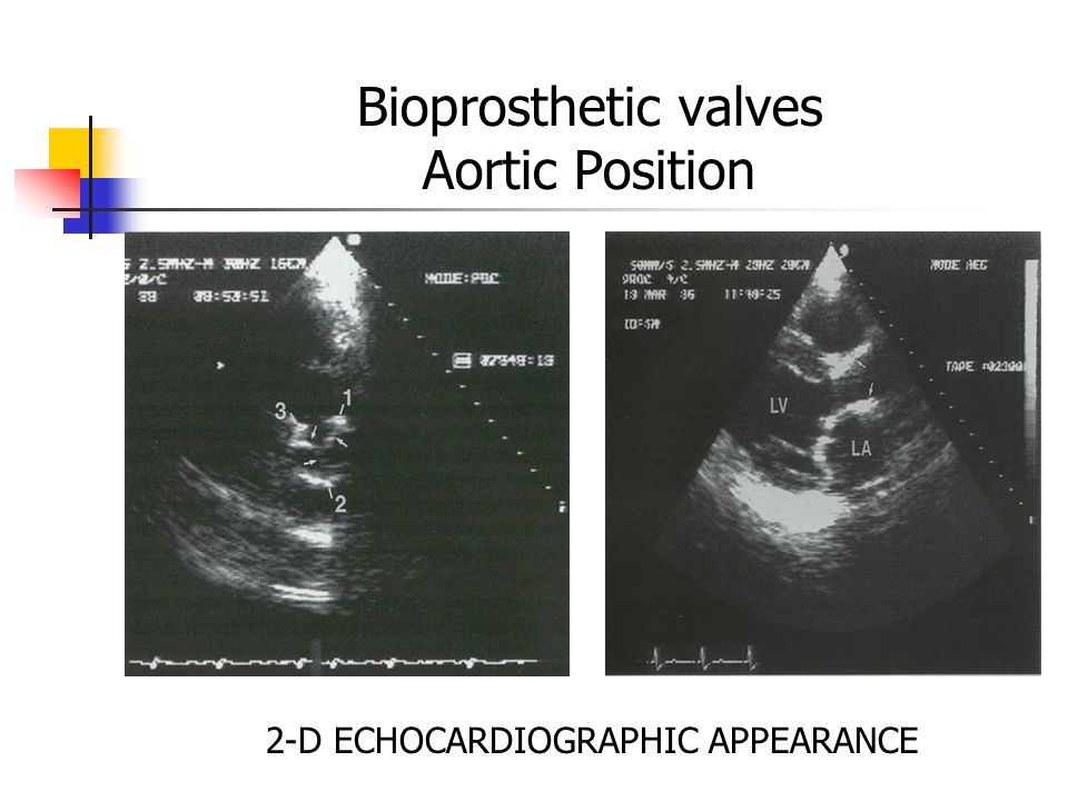 Bioprosthetic valves Aortic Position 2-D ECHOCARDIOGRAPHIC APPEARANCE