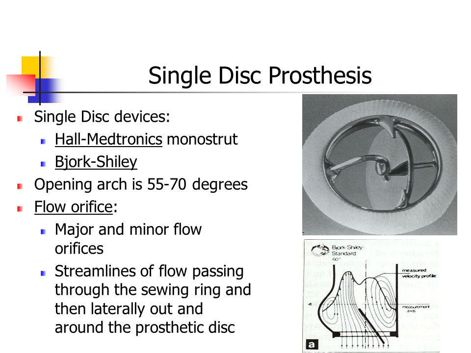 Single Disc Prosthesis Single Disc devices: Hall-Medtronics monostrut Bjork-Shiley Opening arch is 55-70 degrees Flow orifice: Major and minor flow orifices Streamlines of flow passing through the sewing ring and then laterally out and around the prosthetic disc