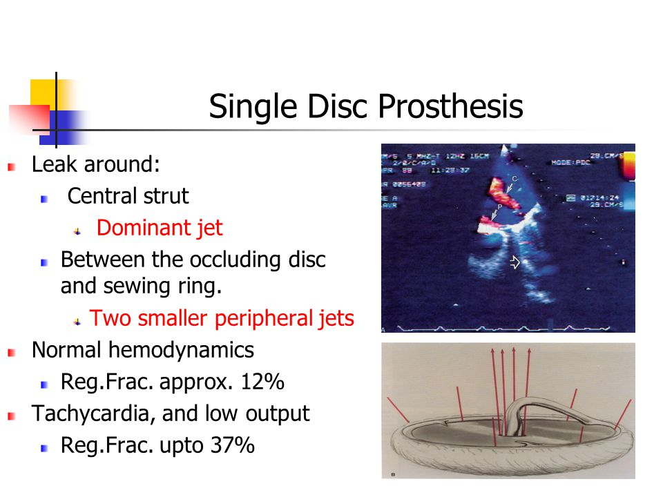 Single Disc Prosthesis Leak around: Central strut Dominant jet Between the occluding disc and sewing ring.