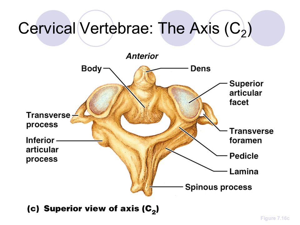 Cervical Vertebrae: The Axis (C 2 ) Figure 7.16c