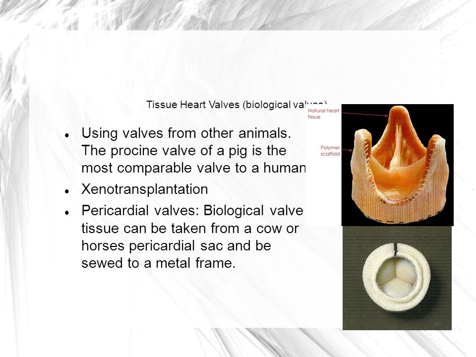 Tissue Heart Valves (biological valves) Using valves from other animals.