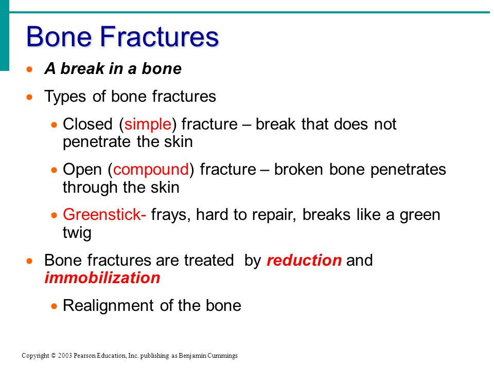 Bone Fractures Copyright © 2003 Pearson Education, Inc.