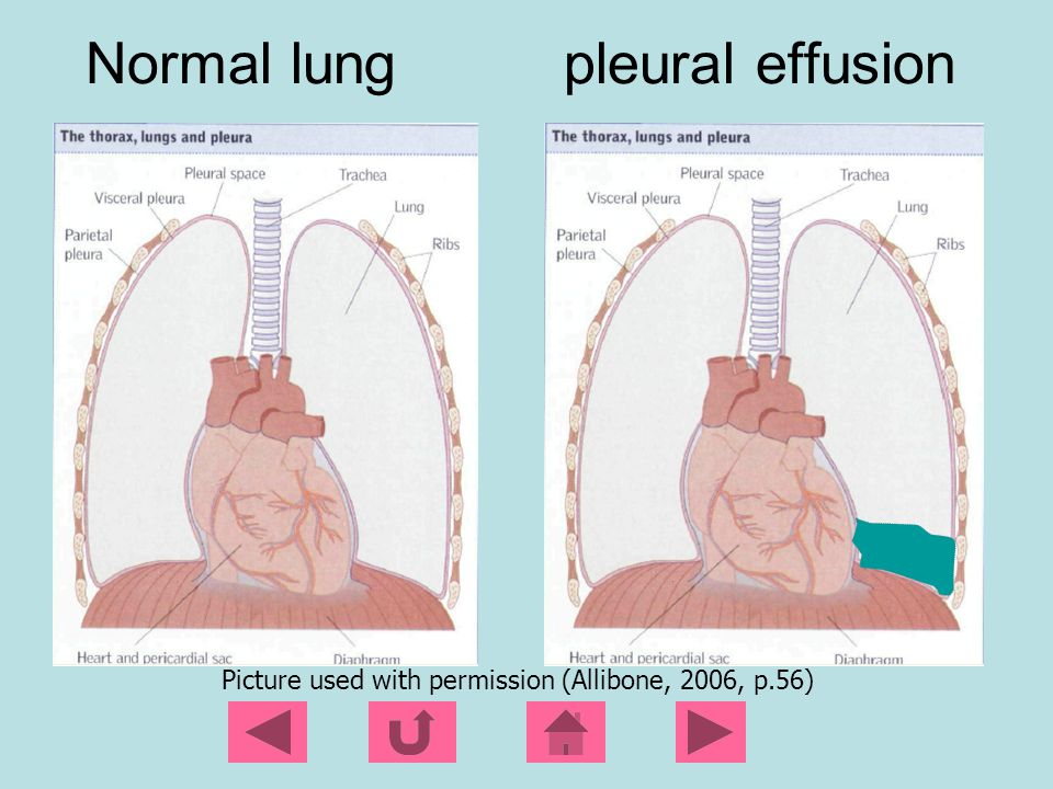 Chemical Pleurodesis Sclerosing agents used: Talc, bleomycin, or doxycyline Administered through a chest tube to create inflammation and subsequent fusion of the parietal and visceral pleura Fluid is then unable to accumulate in this potential space