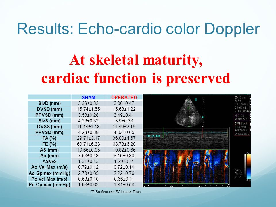 Results: Echo-cardio color Doppler SHAMOPERATED SivD (mm)3.39±0.333.06±0.47 DVSD (mm)15.74±1.5515.68±1.22 PPVSD (mm)3.53±0.283.49±0.41 SivS (mm)4.26±0.323.9±0.33 DVSS (mm)11.44±1.1311.49±2.15 PPVSD (mm)4.23±0.394.02±0.65 FA (%)29.71±3.1736.00±4.67 FE (%)60.71±6.3368.78±6.20 AS (mm)10.66±0.9510.82±0.66 Ao (mm)7.63±0.438.16±0.80 AS/Ao1.31±0.131.29±0.11 Ao Vel Max (m/s)0.79±0.120.72±0.14 Ao Gpmax (mmHg)2.73±0.852.22±0.76 Po Vel Max (m/s)0.68±0.100.66±0.11 Po Gpmax (mmHg)1.93±0.621.84±0.58 At skeletal maturity, cardiac function is preserved ⁰ T-Student and Wilcoxon Tests