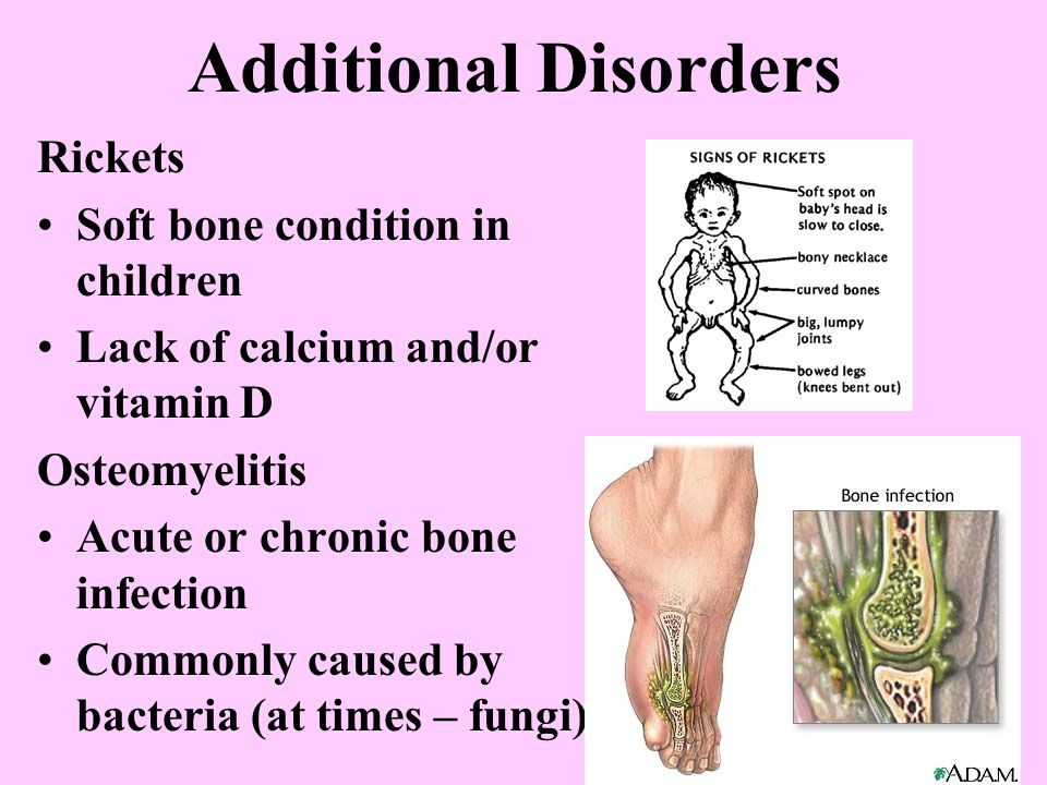 Additional Disorders Rickets Soft bone condition in children Lack of calcium and/or vitamin D Osteomyelitis Acute or chronic bone infection Commonly caused by bacteria (at times – fungi)