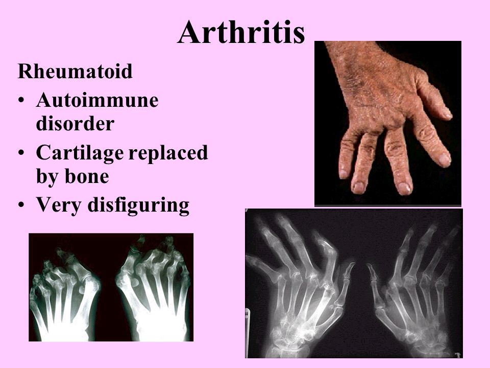 Arthritis Infectious/Acute Bacterial infection Lyme disease Gouty Result of uric acid being deposited b/c kidneys are not properly filtering Deposited in great toe first