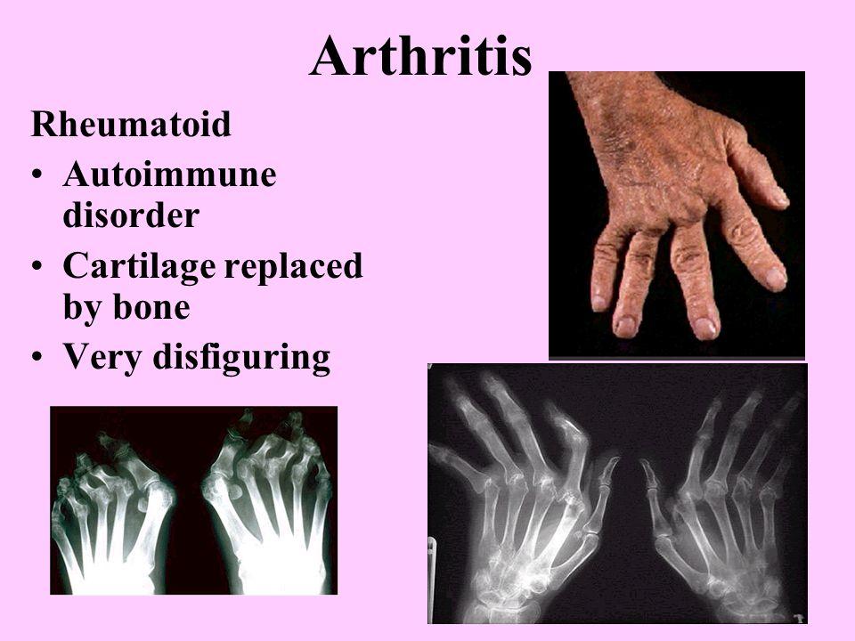 Arthritis Rheumatoid Autoimmune disorder Cartilage replaced by bone Very disfiguring