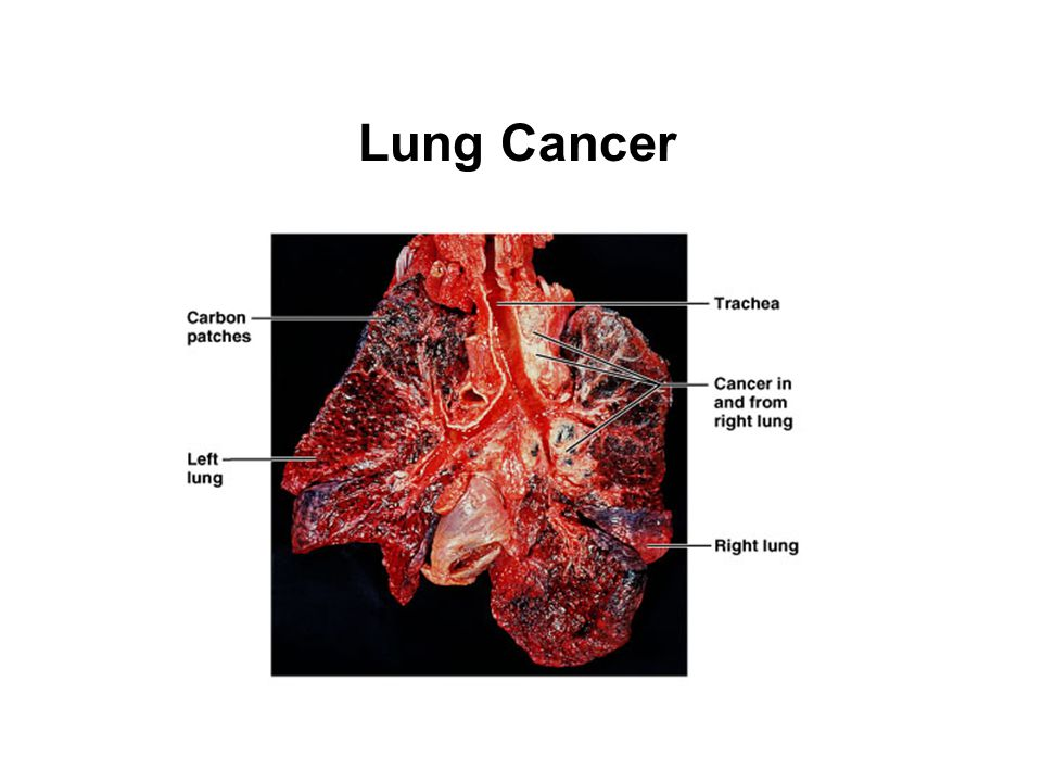 Copyright © 2007 Pearson Education, Inc., publishing as Benjamin Cummings Lung Cancer