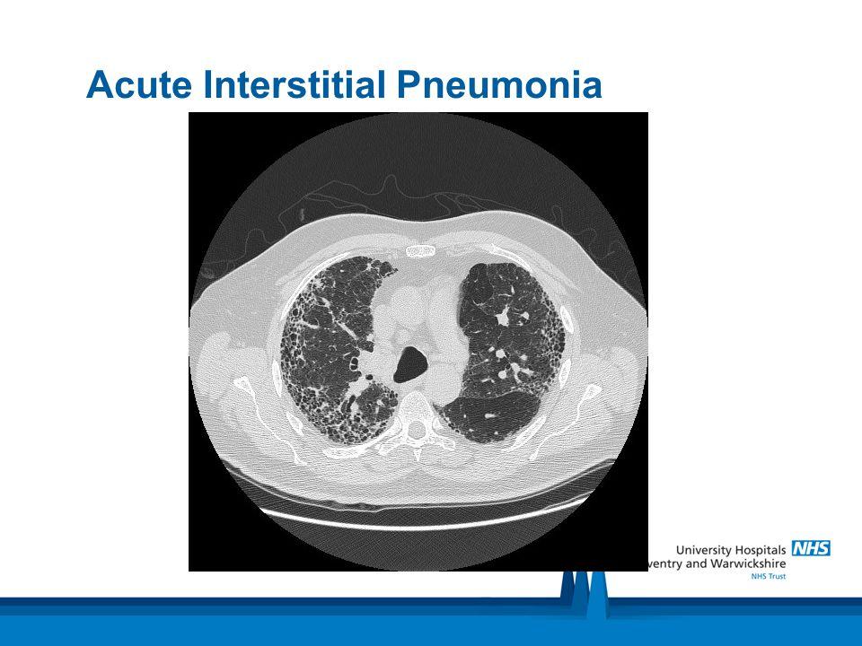Acute Interstitial Pneumonia