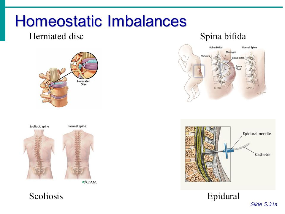Homeostatic Imbalances Slide 5.31a Herniated discSpina bifida Scoliosis Epidural