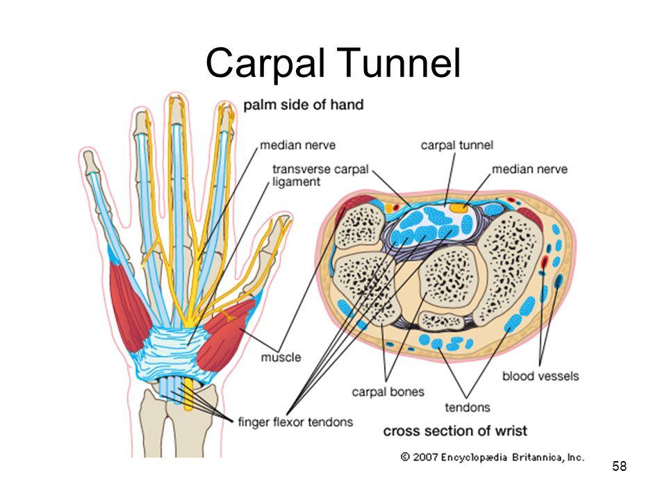 Carpal Tunnel 58