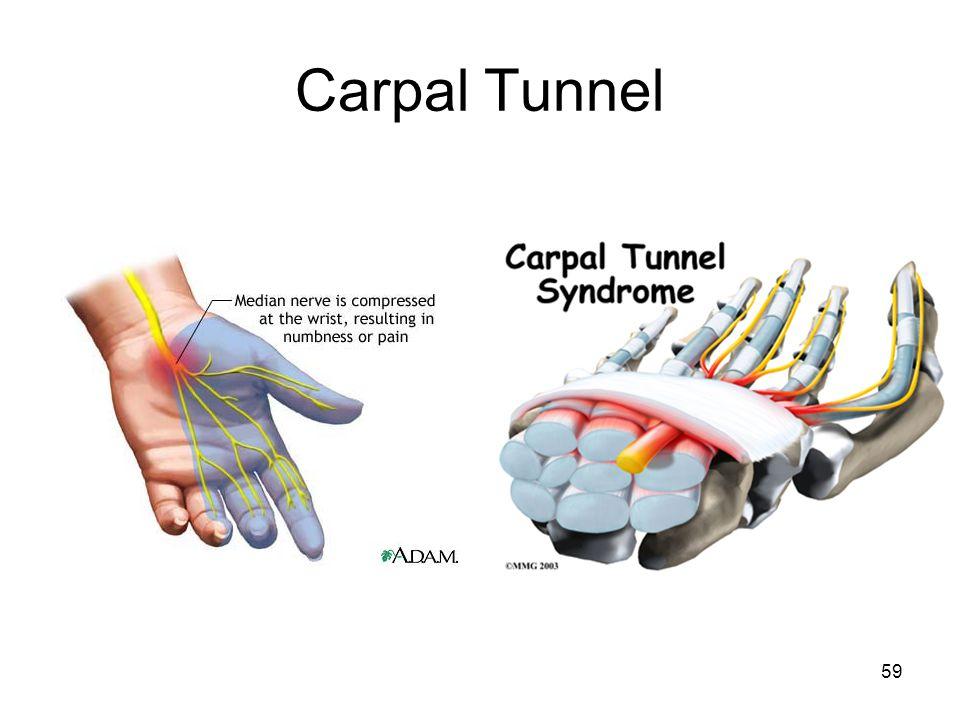 Carpal Tunnel 59