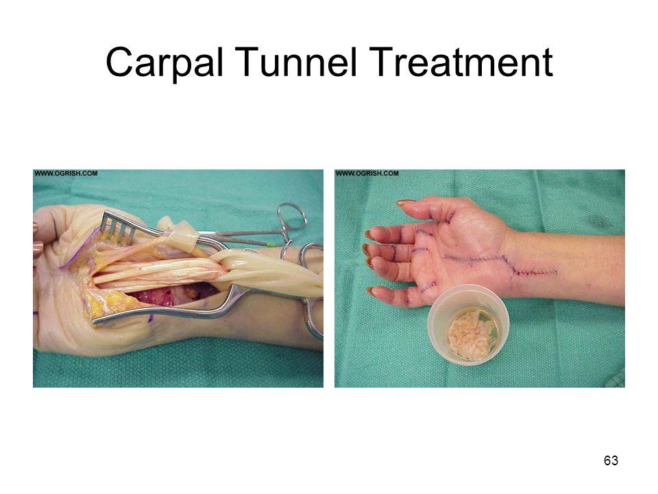 Carpal Tunnel Treatment 63