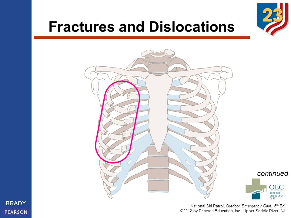 National Ski Patrol, Outdoor Emergency Care, 5 th Ed. ©2012 by Pearson Education, Inc., Upper Saddle River, NJ BRADY Fractures and Dislocations contin