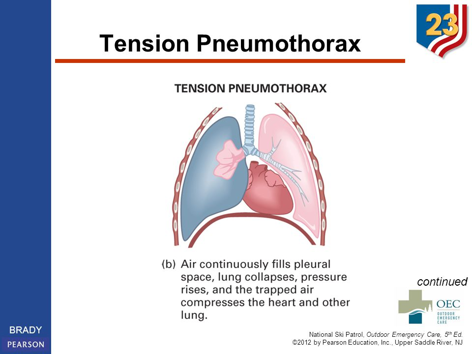 National Ski Patrol, Outdoor Emergency Care, 5 th Ed. ©2012 by Pearson Education, Inc., Upper Saddle River, NJ BRADY Tension Pneumothorax continued