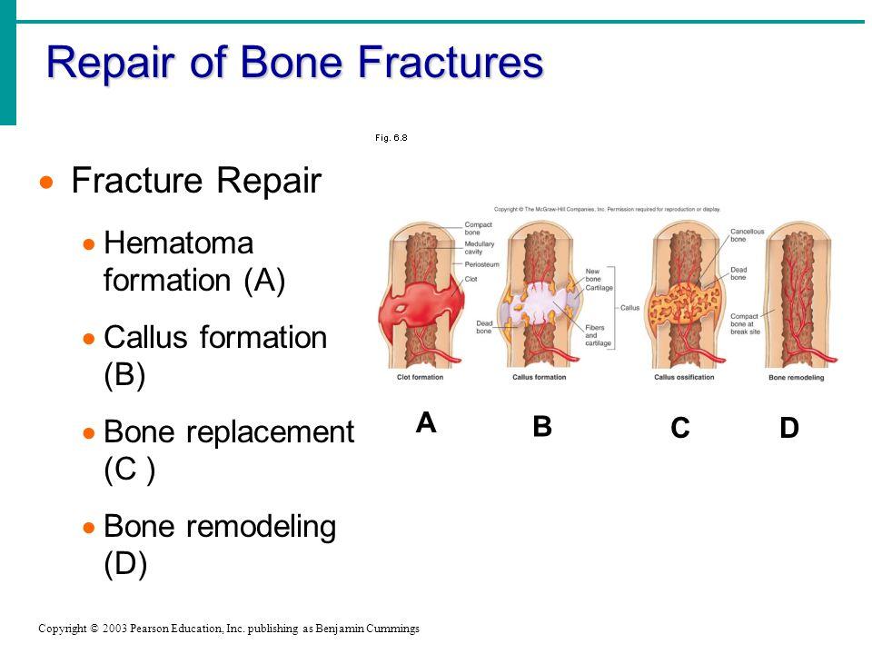Repair of Bone Fractures Copyright © 2003 Pearson Education, Inc.