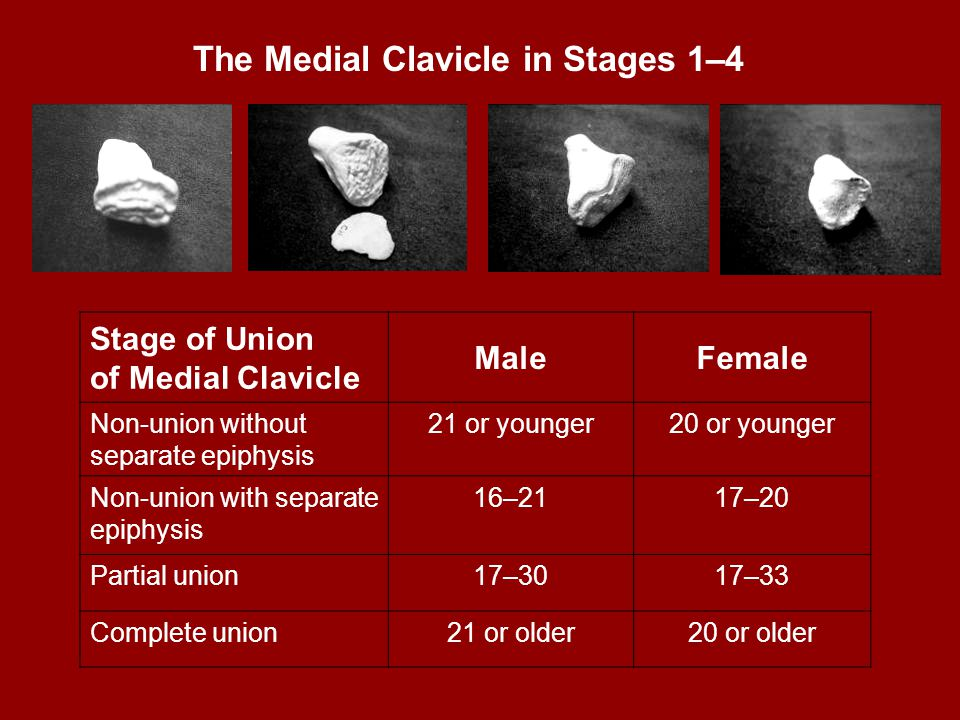 The Medial Clavicle in Stages 1–4 Stage of Union of Medial Clavicle MaleFemale Non-union without separate epiphysis 21 or younger20 or younger Non-uni