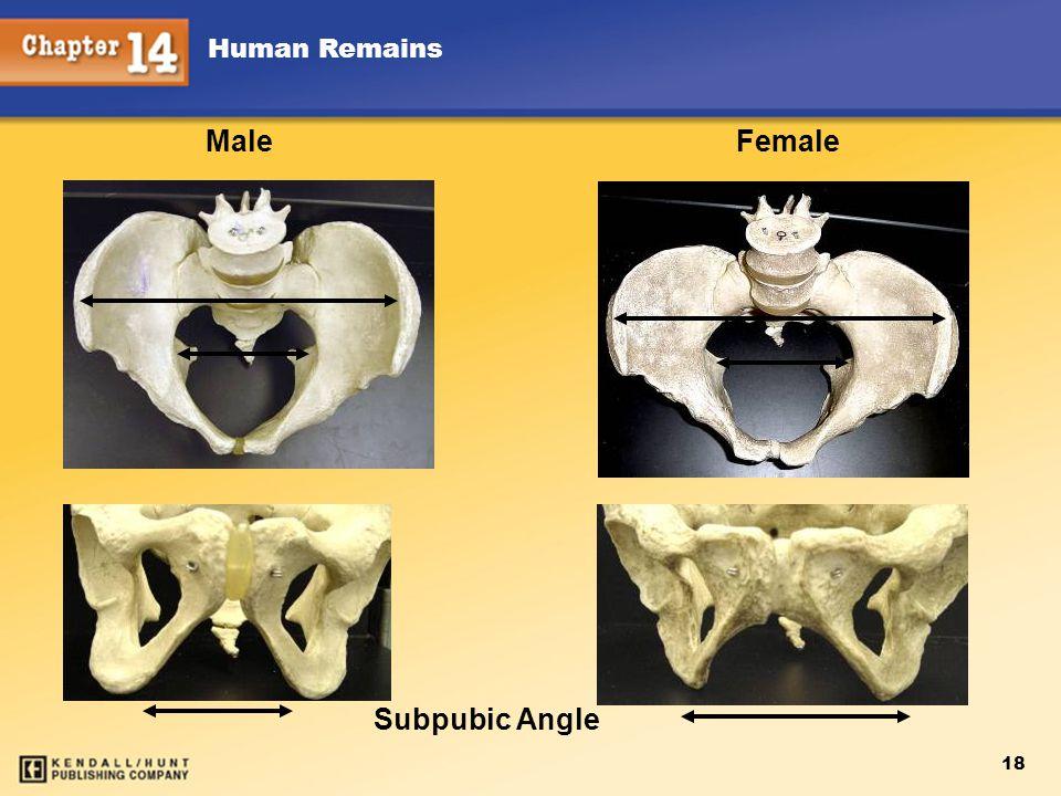 Male Female Subpubic Angle 18 Human Remains