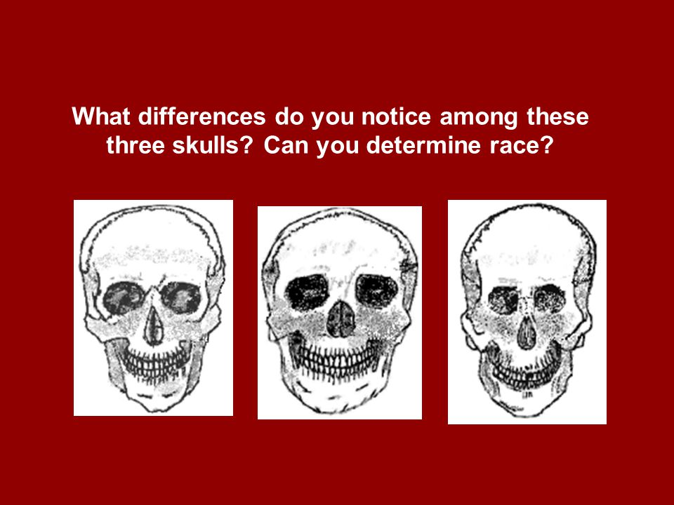 What differences do you notice among these three skulls? Can you determine race?