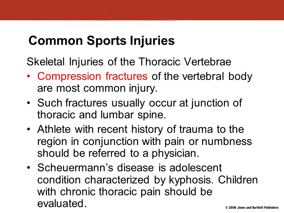 Common Sports Injuries Skeletal Injuries of the Thoracic Vertebrae Compression fractures of the vertebral body are most common injury.