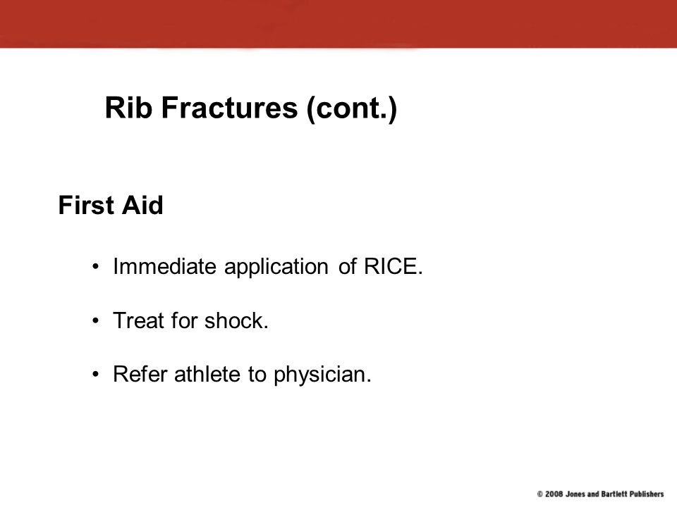 Rib Fractures (cont.) First Aid Immediate application of RICE.