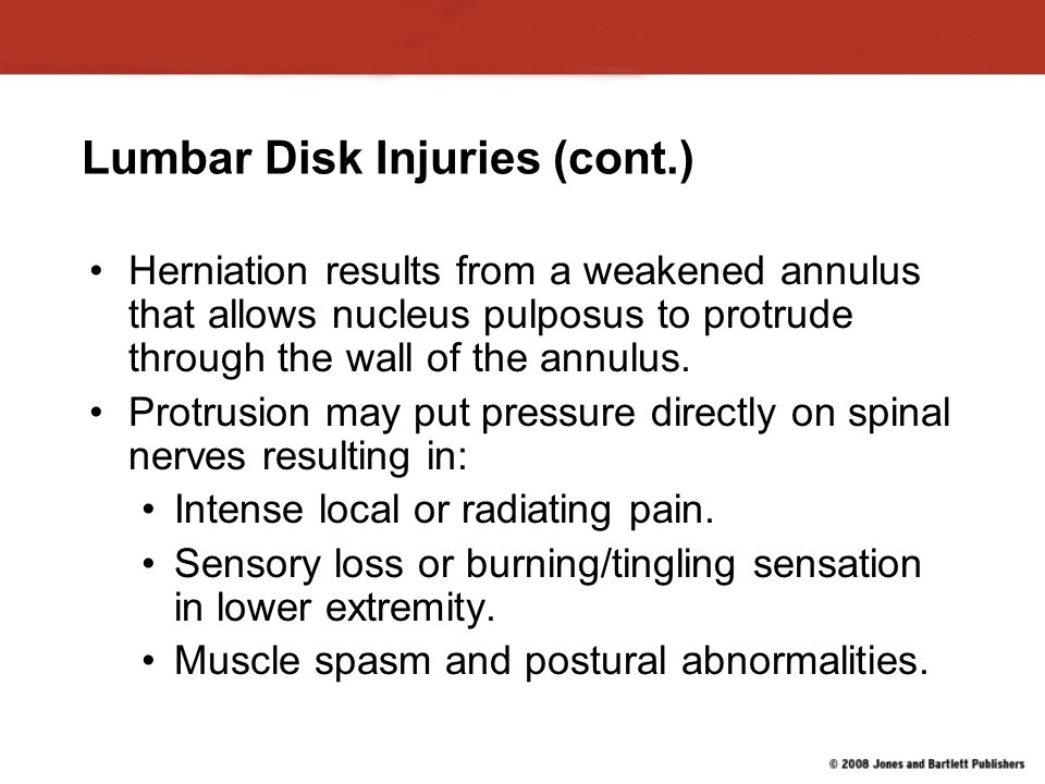 Lumbar Disk Injuries (cont.) Herniation results from a weakened annulus that allows nucleus pulposus to protrude through the wall of the annulus.