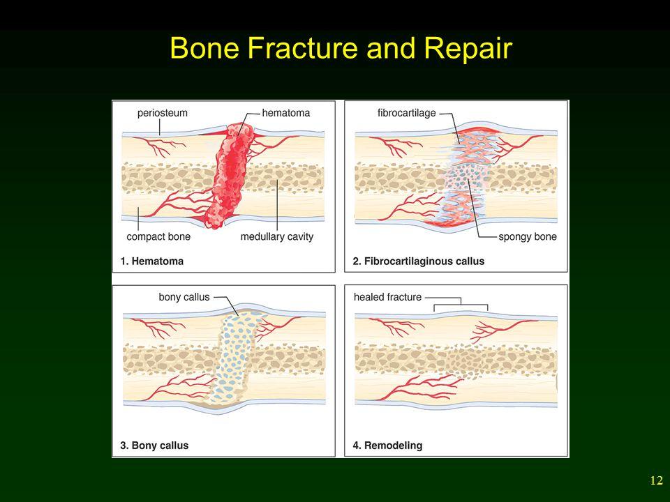 12 Bone Fracture and Repair