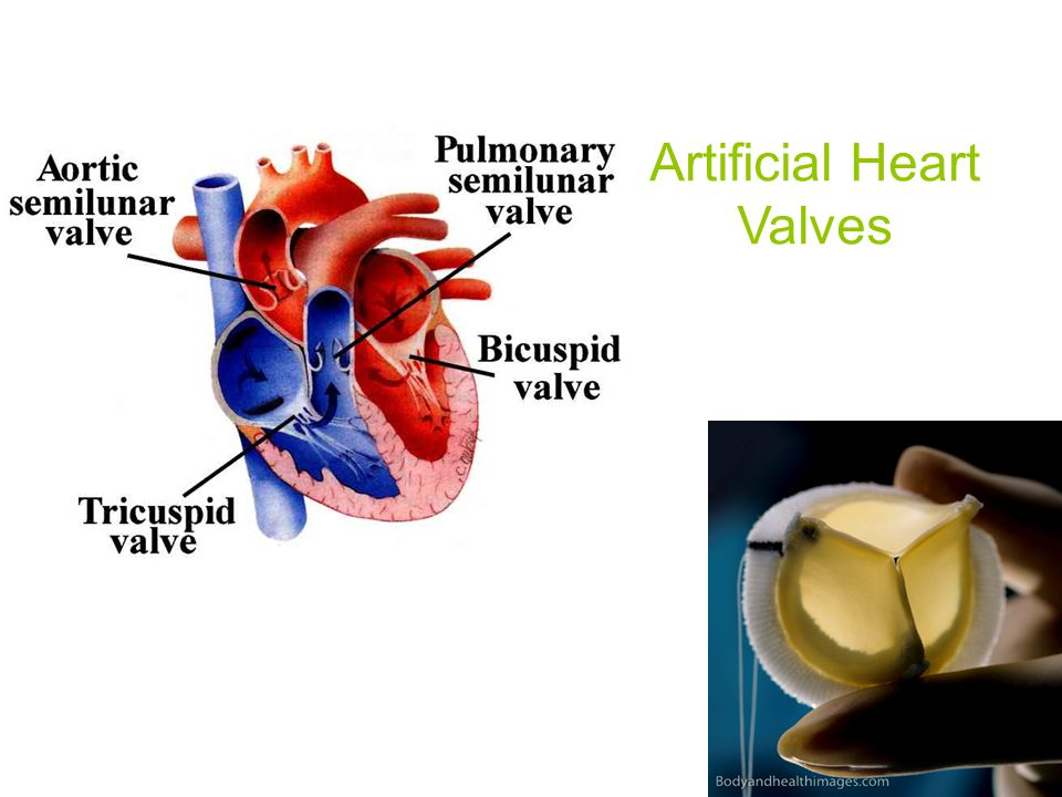 Artificial Heart Valves