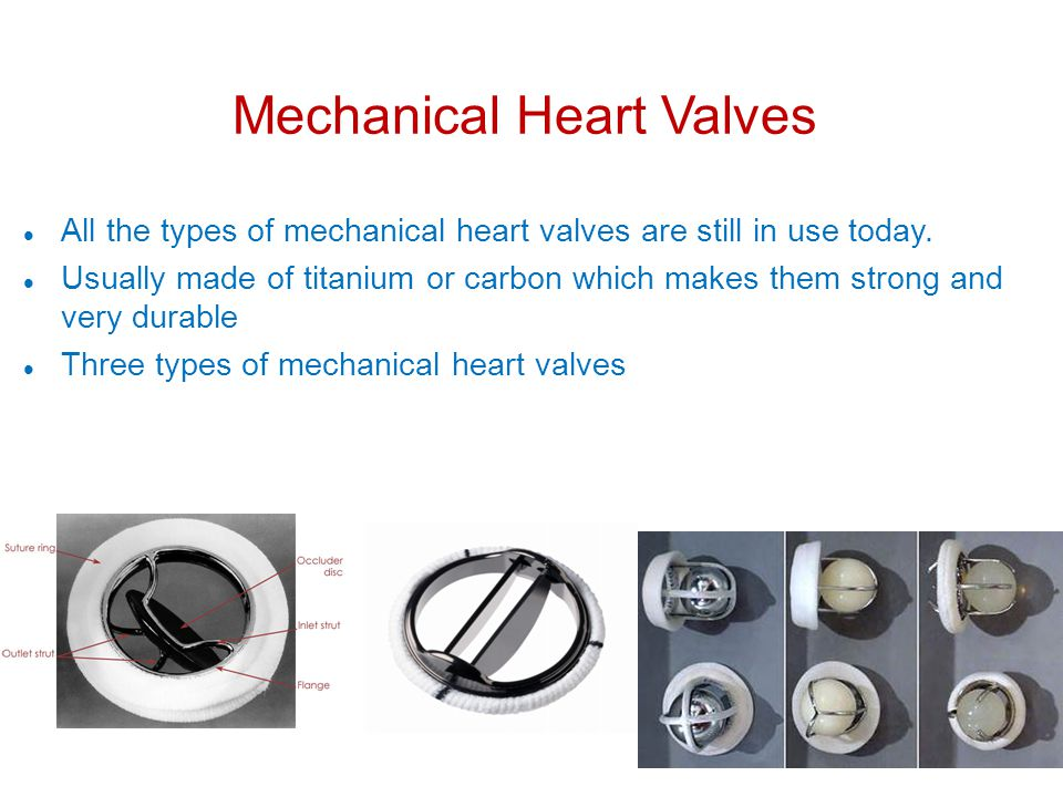 Mechanical Heart Valves All the types of mechanical heart valves are still in use today.