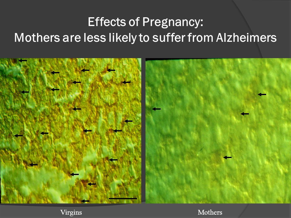 Effects of Pregnancy: Mothers are less likely to suffer from Alzheimers VirginsMothers