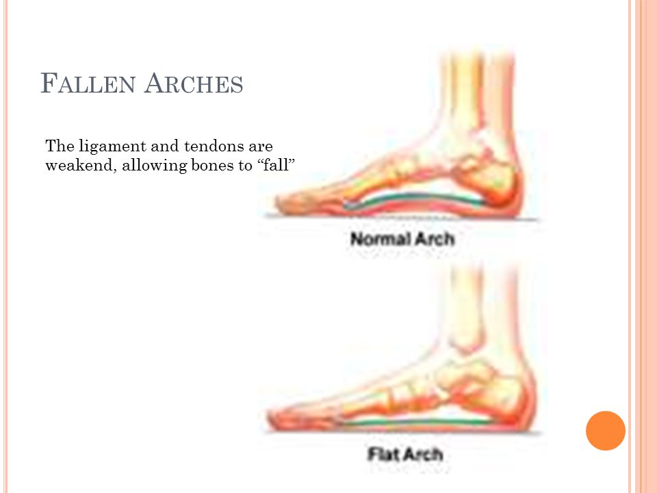 """F ALLEN A RCHES The ligament and tendons are weakend, allowing bones to """"fall"""""""