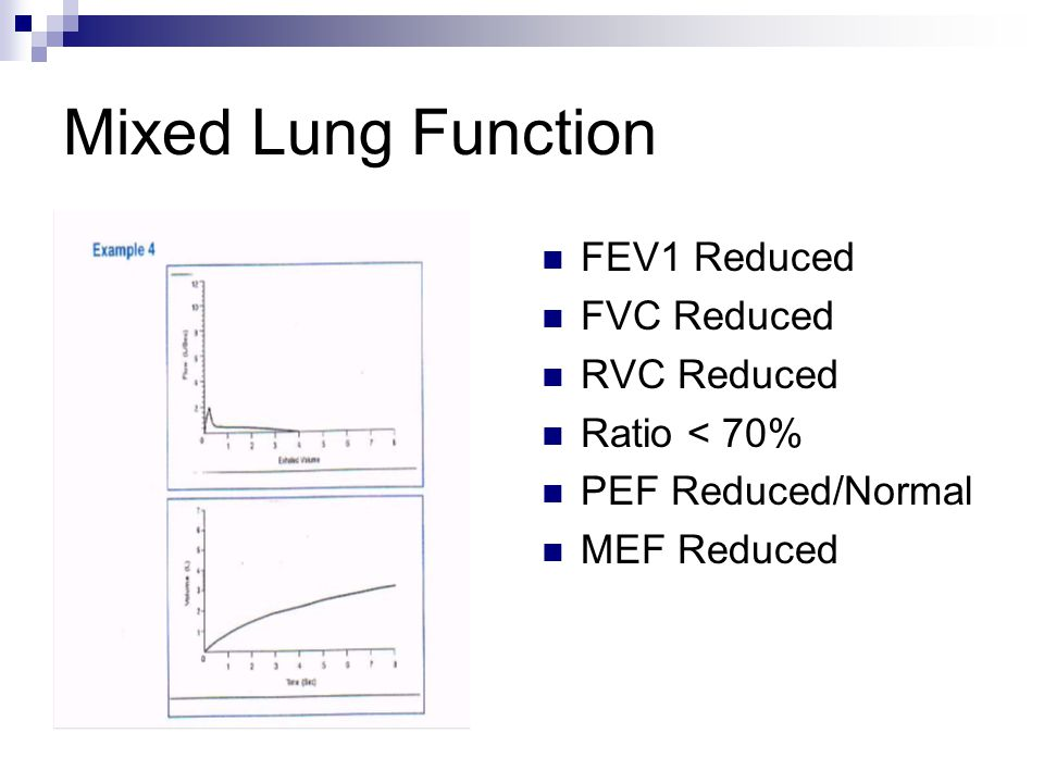 Mixed Lung Function FEV1 Reduced FVC Reduced RVC Reduced Ratio < 70% PEF Reduced/Normal MEF Reduced