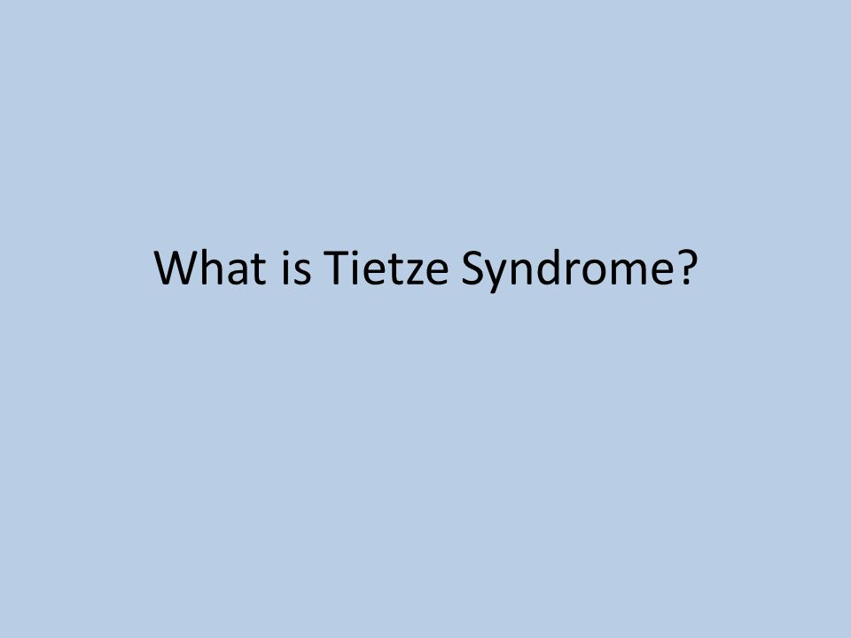 What is Tietze Syndrome?