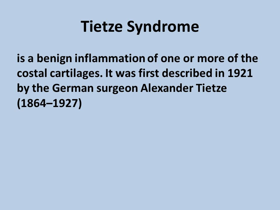 Tietze Syndrome is a benign inflammation of one or more of the costal cartilages. It was first described in 1921 by the German surgeon Alexander Tietz