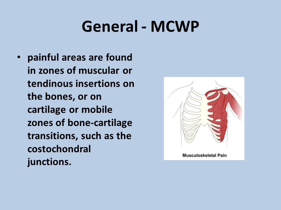 General - MCWP painful areas are found in zones of muscular or tendinous insertions on the bones, or on cartilage or mobile zones of bone-cartilage tr