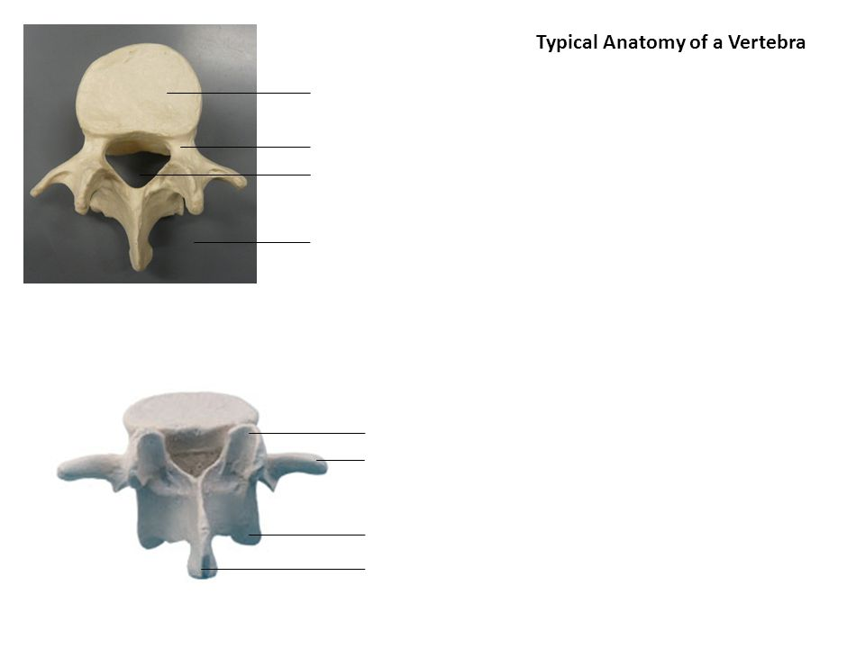 Typical Anatomy of a Vertebra