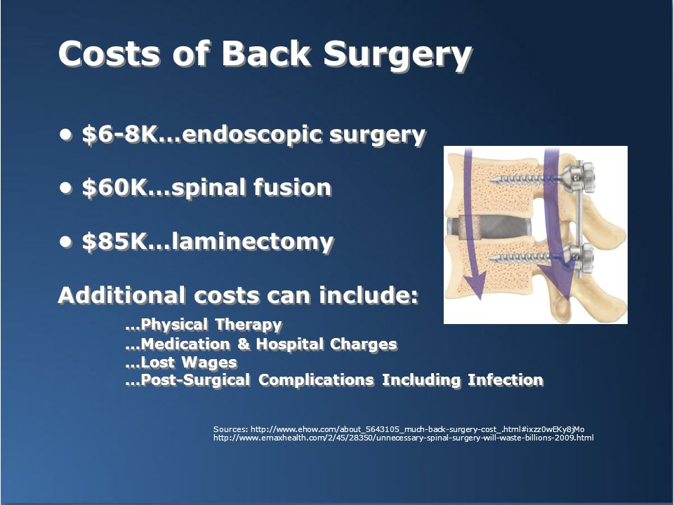 Costs of Back Surgery $6-8K…endoscopic surgery $60K…spinal fusion $85K…laminectomy Additional costs can include: …Physical Therapy …Medication & Hospi