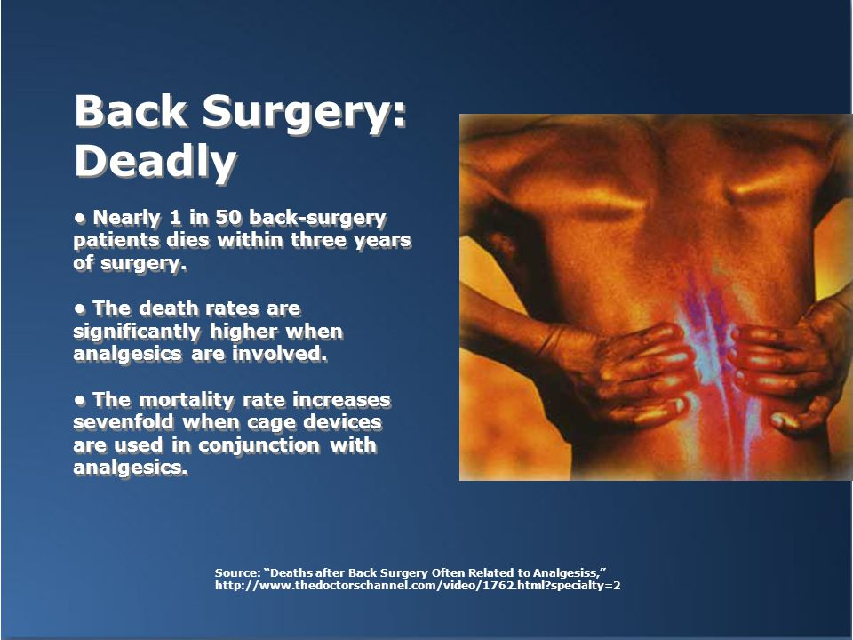Back Surgery: Deadly Nearly 1 in 50 back-surgery patients dies within three years of surgery.