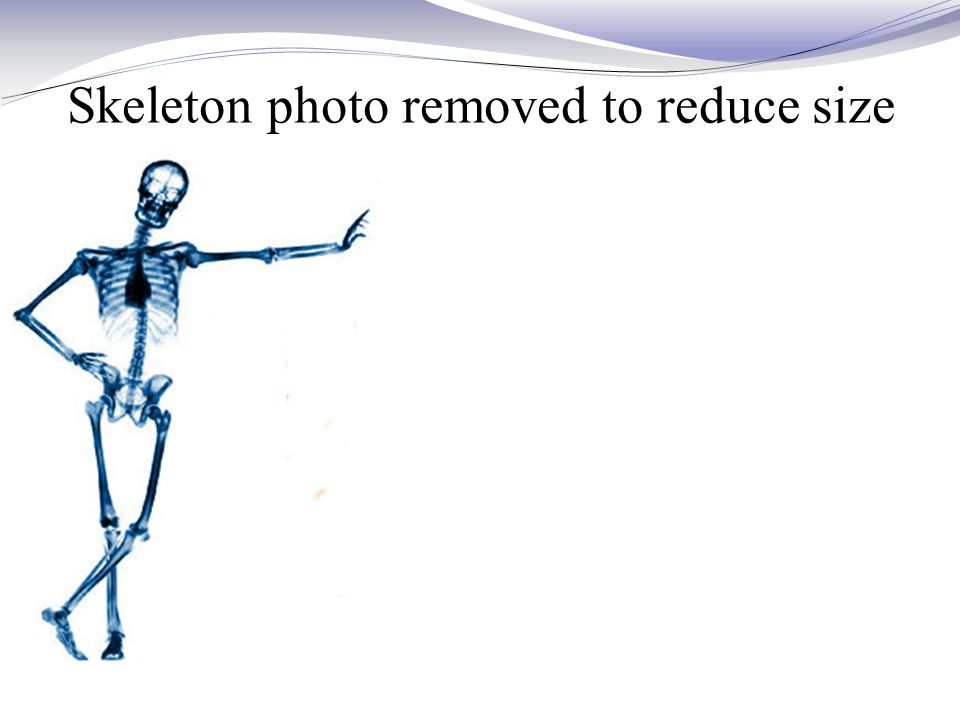 Skeleton photo removed to reduce size