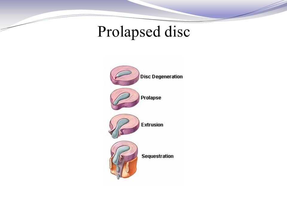 Prolapsed disc