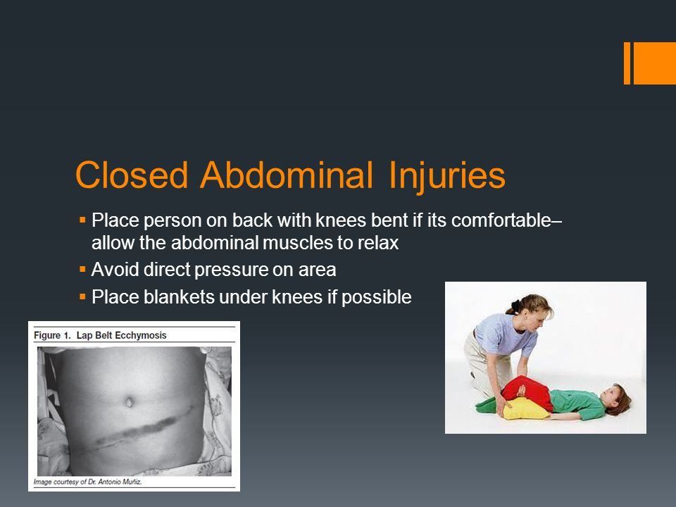 Closed Abdominal Injuries  Place person on back with knees bent if its comfortable– allow the abdominal muscles to relax  Avoid direct pressure on area  Place blankets under knees if possible