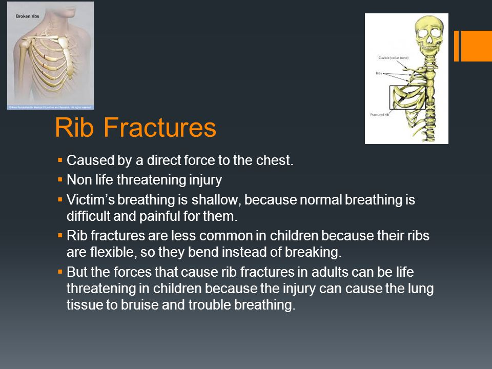 Rib Fractures  Caused by a direct force to the chest.