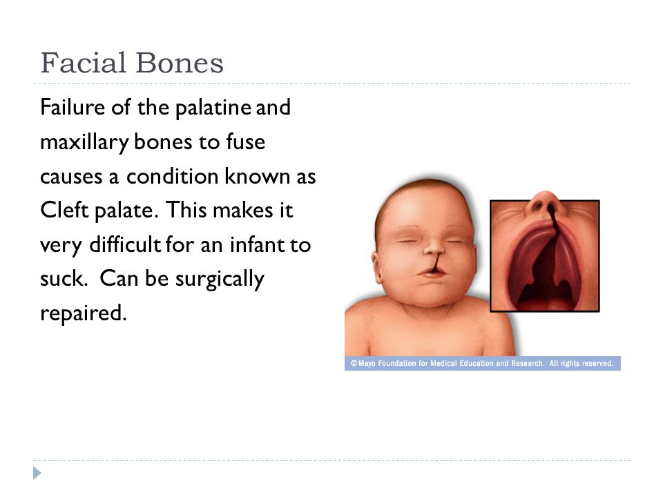 Facial Bones Failure of the palatine and maxillary bones to fuse causes a condition known as Cleft palate. This makes it very difficult for an infant
