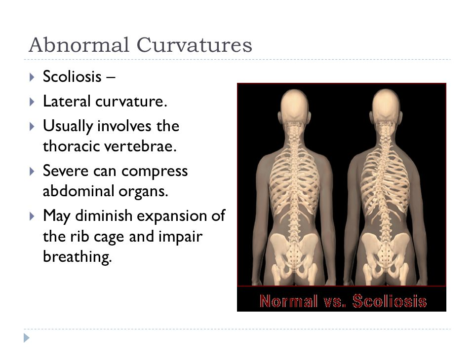 Abnormal Curvatures  Scoliosis –  Lateral curvature.  Usually involves the thoracic vertebrae.  Severe can compress abdominal organs.  May dimini