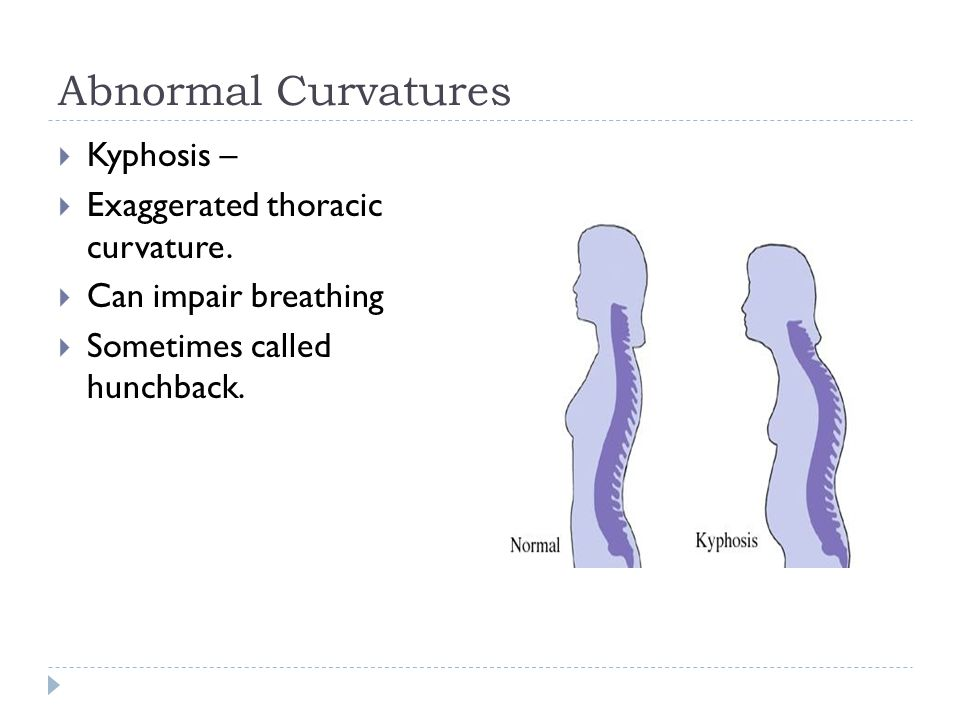 Abnormal Curvatures  Kyphosis –  Exaggerated thoracic curvature.  Can impair breathing  Sometimes called hunchback.