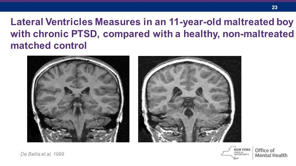 23 Lateral Ventricles Measures in an 11-year-old maltreated boy with chronic PTSD, compared with a healthy, non-maltreated matched control De Bellis et al, 1999
