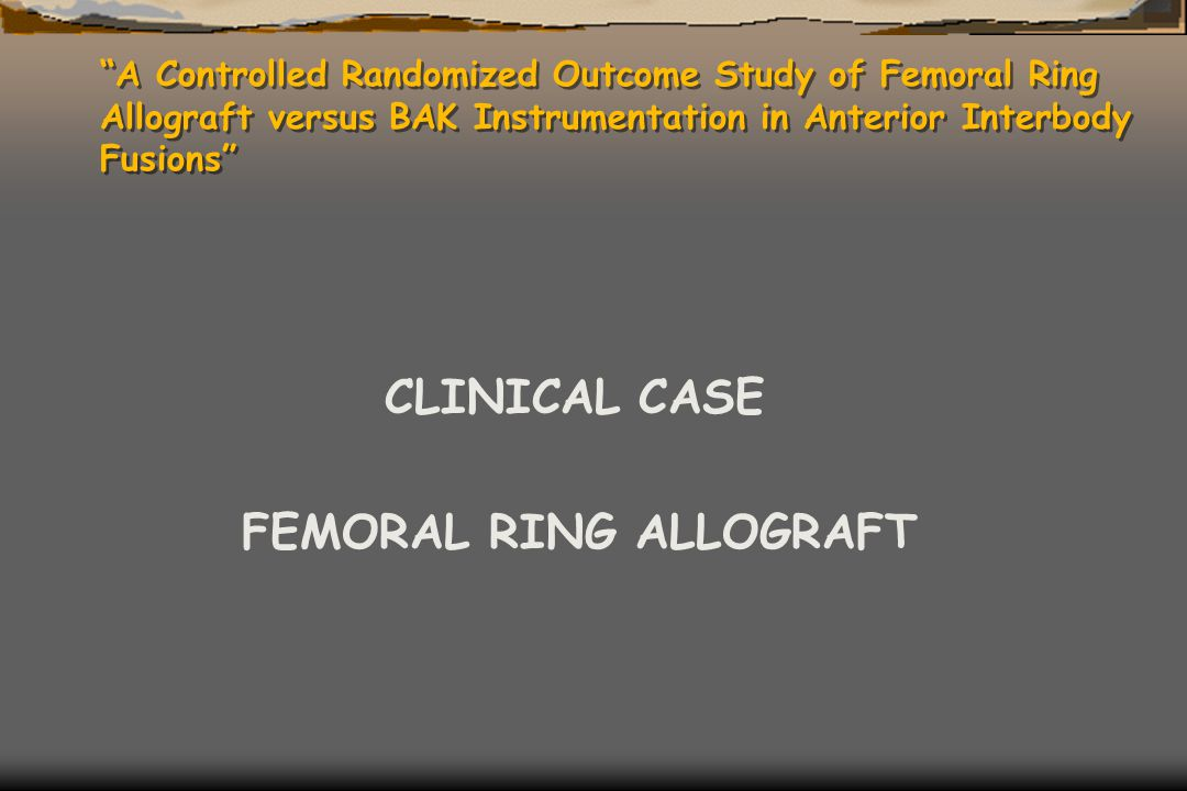 """A Controlled Randomized Outcome Study of Femoral Ring Allograft versus BAK Instrumentation in Anterior Interbody Fusions"" CLINICAL CASE FEMORAL RING"