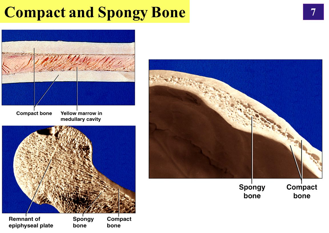 7 Compact and Spongy Bone