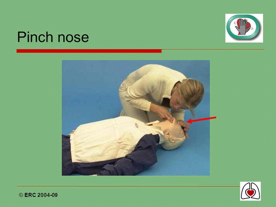 © ERC 2004-09 Pinch nose