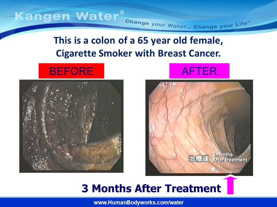 BEFORE AFTER 3 Months After Treatment www.HumanBodyworks.com/water This is a colon of a 65 year old female, Cigarette Smoker with Breast Cancer.